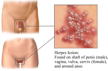 herpes symptoms in men and signs of herpes herpes cure tips