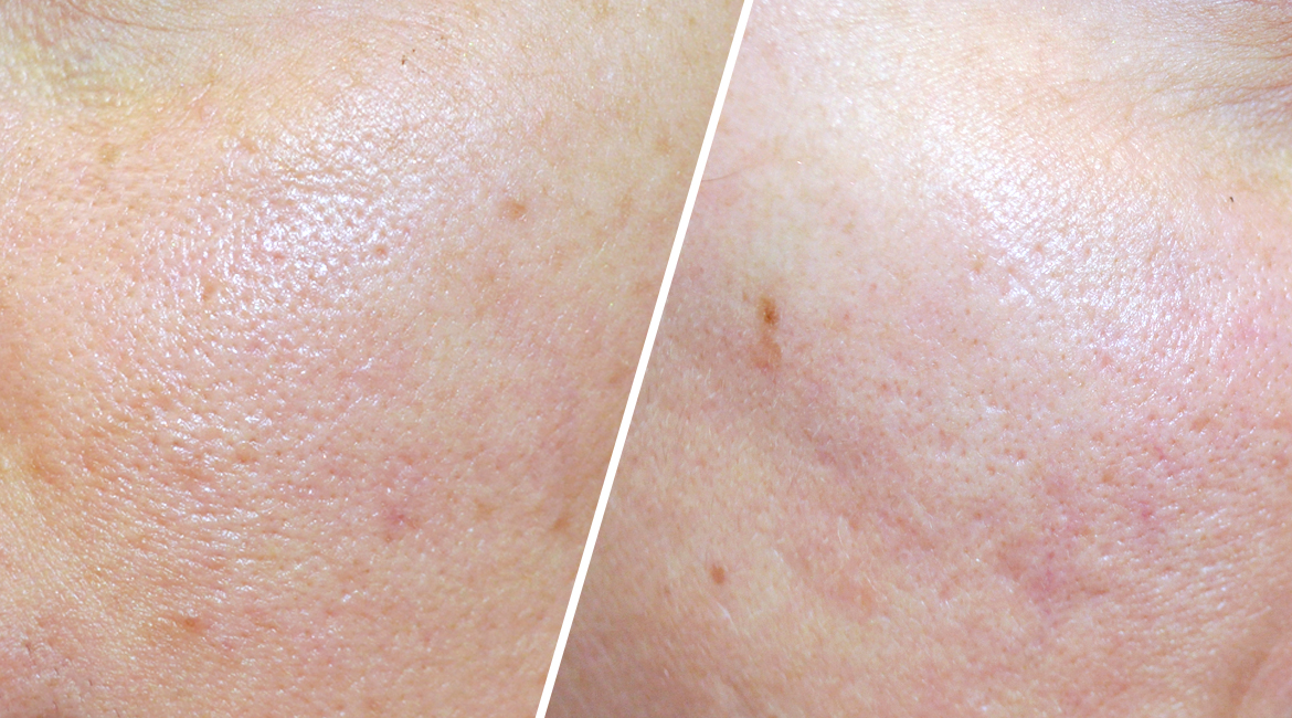 Close up of skin before PicoWay Resolve Treatment