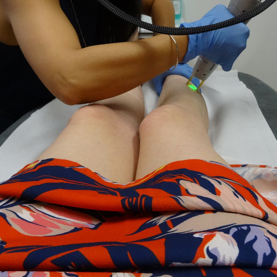 Gentle Pro laser hair removal