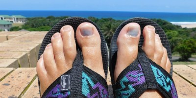 My poor toenails after suffering a grueling nine-kilometer hike