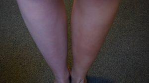 1 been met zelfbruiner, en 1 zonder