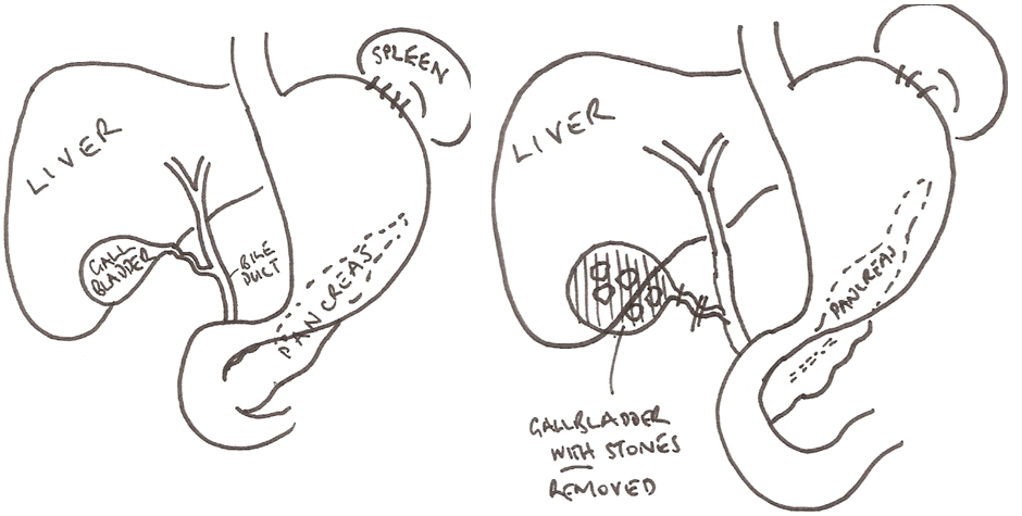 Laparoscopic Cholecystectomy (removal of the gall bladder