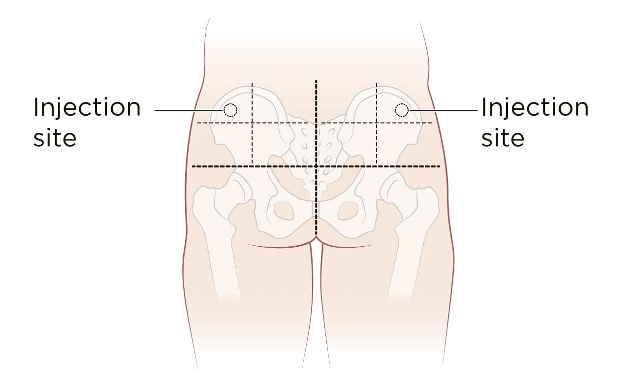 hight resolution of diagram of injection site