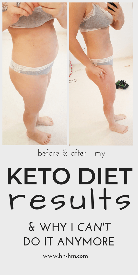Weight loss keto diet results and review of the ketogenic diet - my before and after pictures after completing the low-carb high-fat diet. Plus why I had to stop and would never do it again, even though I lost weight and loved the keto snacks, keto dinner recipes and my keto desserts. #keto #weightloss #before #after #ketodiet #lowcarb