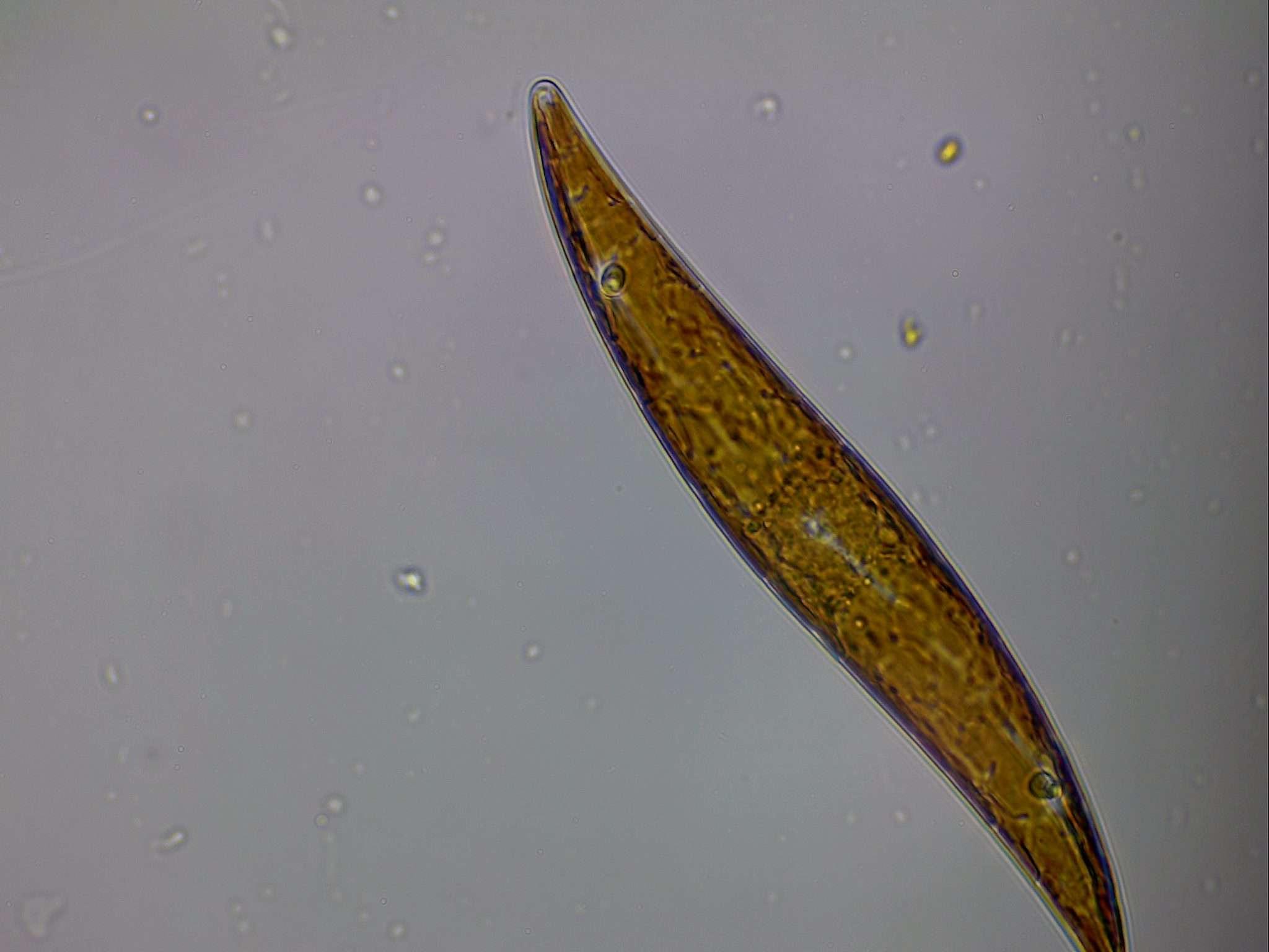 Gyrosigma