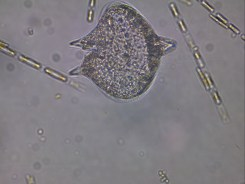 protoperdinium