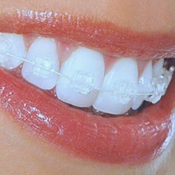 Private Orthodontic Treatment at Highland Orthodontics ...