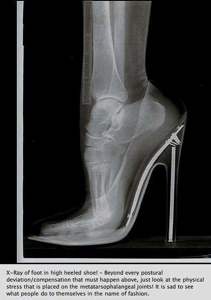 Use the AT and inhibit  say no to high heels  Articles