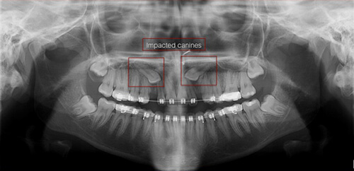 Impacted Tooth Upper Canine