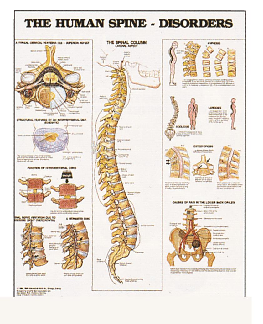 hight resolution of wall chart the human spine disorders single
