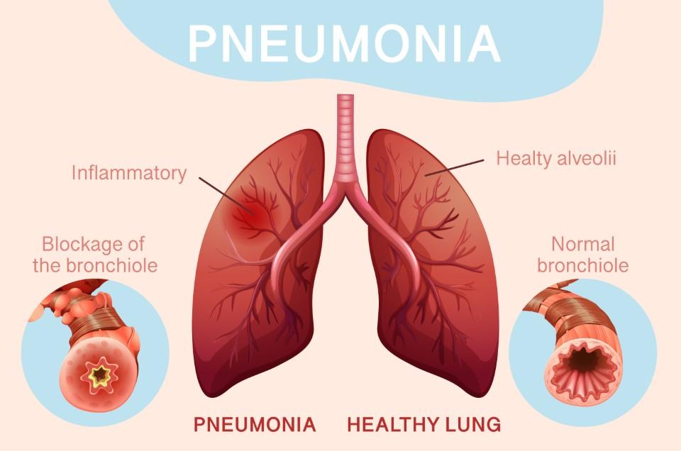 निमोनिया (Pneumonia) क्या है?