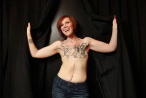 Masektoomia ja tattoo