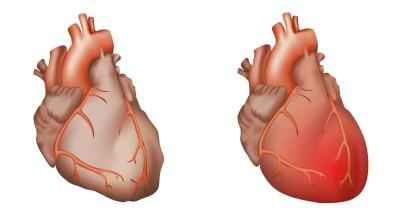 Herzentzündungen