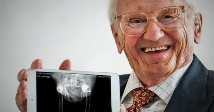 Man with hip xray