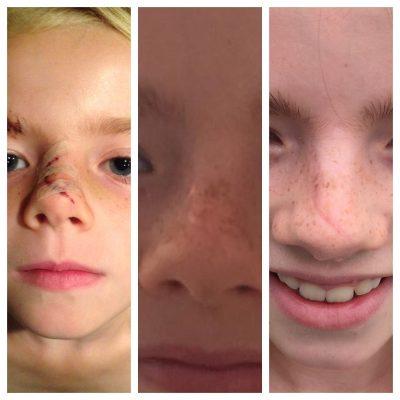 litteken gezicht