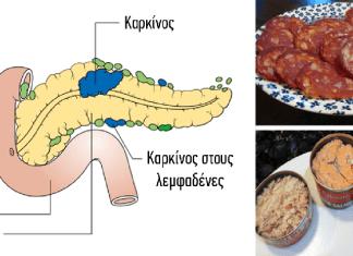 14 τροφές που έχουν αποδειχθεί ότι προκαλούν καρκίνο, δεν πρέπει να ξαναβάλετε στο στόμα σας