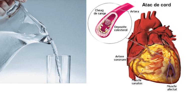Πίνοντας νερό με άδειο στομάχι αμέσως μετά το ξύπνημα
