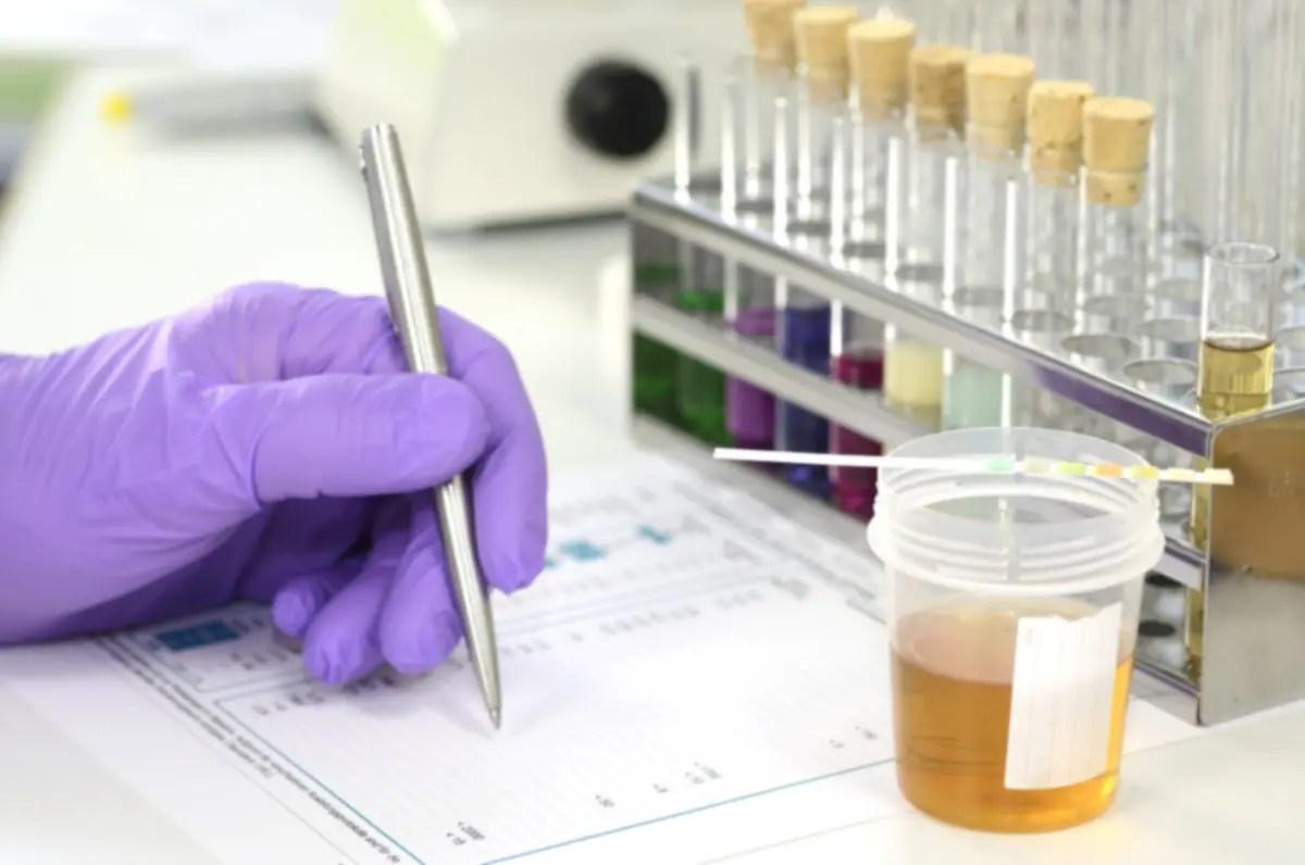 Drug Tests At Work