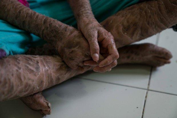 Megrázó fotók, így él a súlyos beteg, 13 éves kígyólány 1