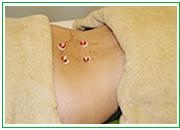 冷え・むくみ・消化不良などの改善、肌あれや身體の中から美しくなりたい方 | ひろた鍼灸整骨院