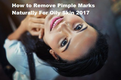 How to Remove Pimple Marks Naturally For Oily Skin