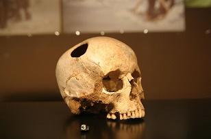 Un caso de trepanación cerebral del neolítico