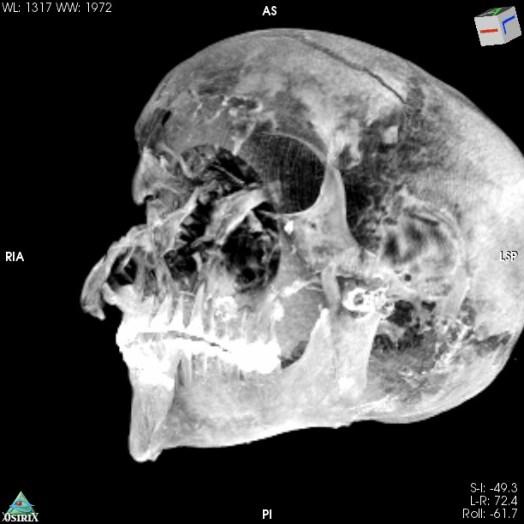 Momia faraon Seqenenre-Taa II Foto: Frontiers in Medicine