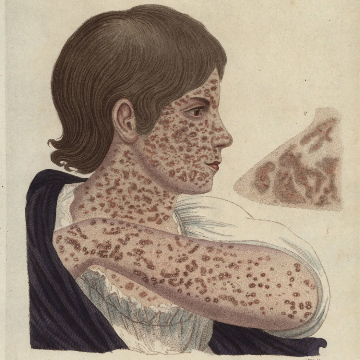 The measles