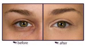 How-to-Apply-Under-Eye-Concealers-Before-ApplyingUnder-Eye-Concealer-and-After