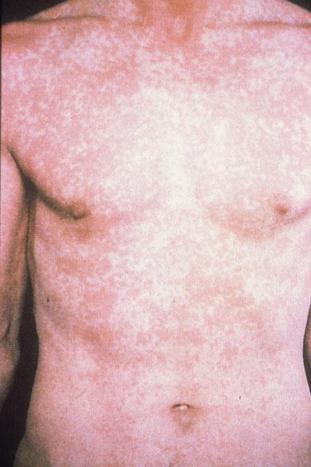 HIVAIDS Dermatological Images  HIVAIDS