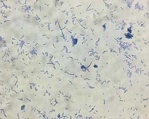 lactobacillus_500x399