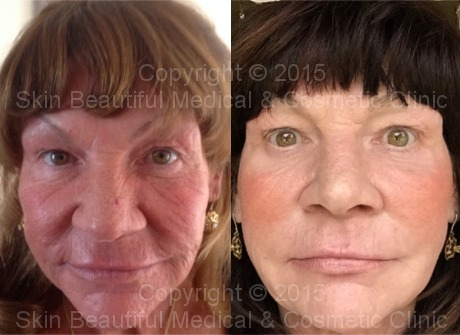 Skin tejuvenation with dermal fillers by HELEN BOWES