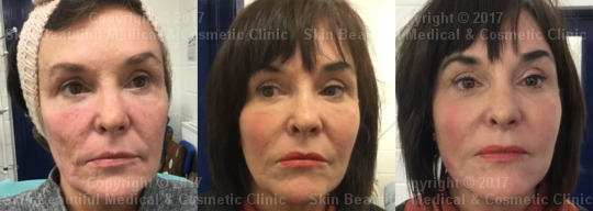 thread lift before and after 7 point by Helen Bowes