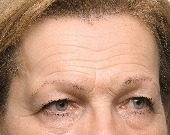 Forehead lines (wrinkles) treatments