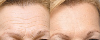 Forehead Lines Before & After Treatment