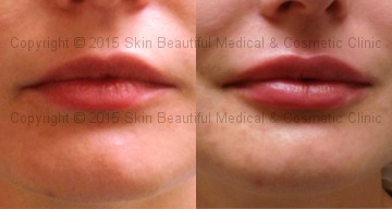 Lip augmentation & Correction