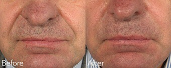 Nasolabial Folds (Nose To Mouth Lines) Before & After Treatment