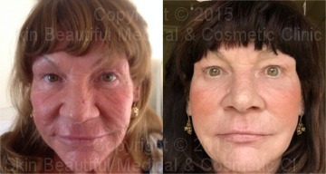 5 Point PDO Thread lift & skin rejuvenation by Helen Bowes
