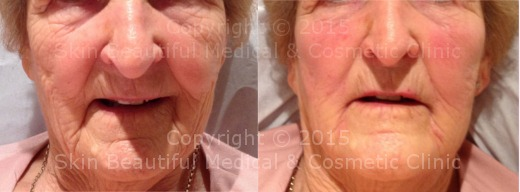 8 point Signature Facelift by HELEN BOWES