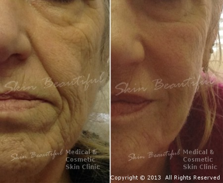 Liquid facelift by Helen Bowes