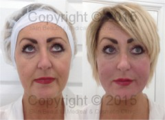 5 point PDO thread lift by Helen Bowes