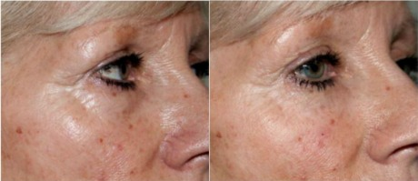Eye circles before and after treatment