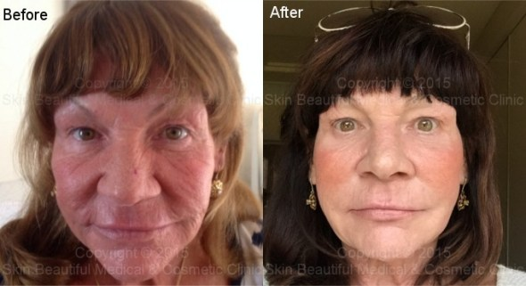 PDO thread lift before & after by Helen Bowes