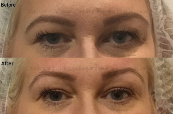 PDO thread brow lift before & after by helen Bowes