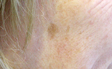 Age spot on face - before treatment