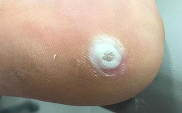 Plantar wart - before treatment
