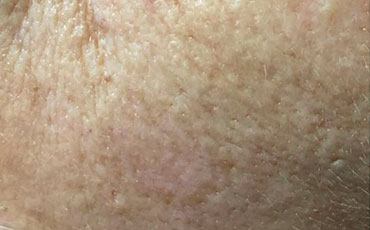 Keratosis - after treatment
