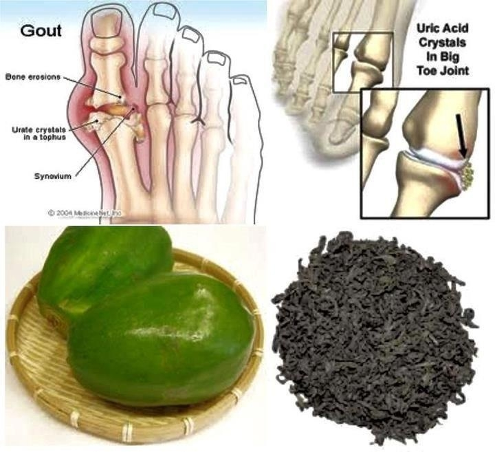 Picture: Papaya Tea for Treating Uric Acid and Gout Problems