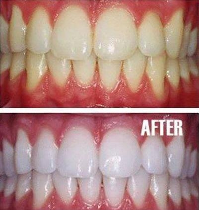 Picture of Natural Teeth Whitening Home Remedy