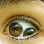 Picture about Double Pupil Pupula Duplex